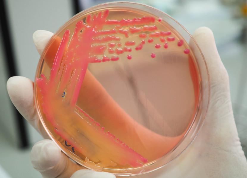 Superbactérias ou bactérias multirresistentes é o nome dado às bactérias que são resistentes a vários antibióticos.