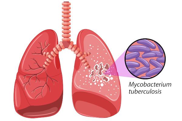 A tuberculose é uma doença causada por uma bactéria que atinge, principalmente, os pulmões.
