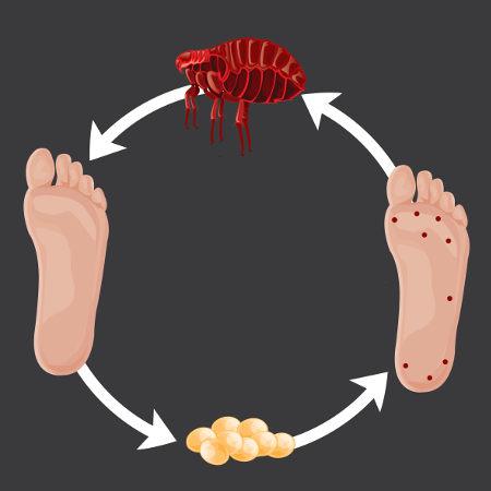 O bicho-de-pé é causado por uma pulga