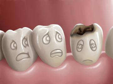 A cárie pode provocar furos nos dentes e causar muita dor