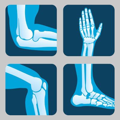 As articulações garantem que nosso esqueleto consiga movimentar-se