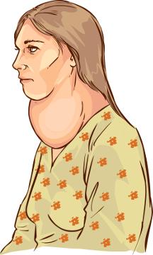 O bócio caracteriza-se pelo aumento da tireoide