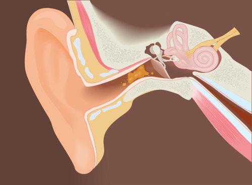 O cerume é formado no canal auditivo e possui função protetora