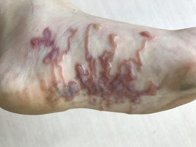 Lesões causadas pela movimentação do nematódeo