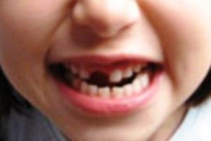 85a257026 Cuidado com os Dentes - Escola Kids