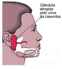 Glândulas que se localizam próximo ao ouvido e que são atingidas pela caxumba