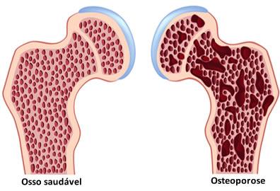 Na imagem, podemos ver a diferença entre um osso normal e um osso com osteoporose