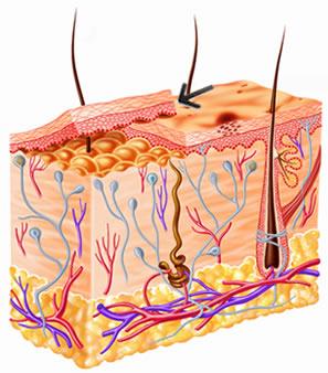 Na figura, a seta está indicando as camadas de células da pele