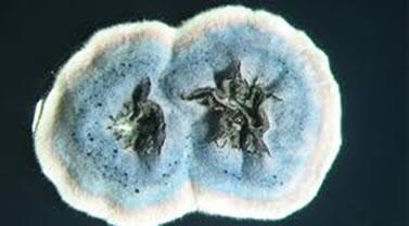 Imagem da bactéria Streptomyces coelicolor, responsável pelo aroma de terra molhada.