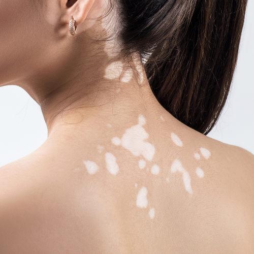 Pessoas com vitiligo apresentam manchas na pele sem pigmentação.
